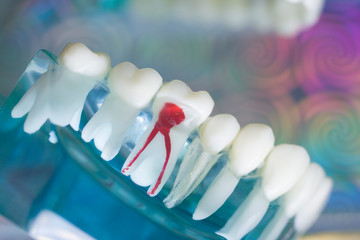 Dentist tooth decay dental model