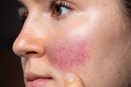 A young caucasian woman is seen closeup and from the side, pointing towards her red flushing cheek with blotches and dilated blood vessels, al symptomatic of rosacea