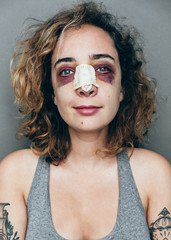 portrait of a woman with rhinoplasty and black eye