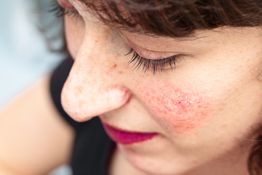 A closeup and high angle view of a pretty woman suffering from persistent facial redness (erythema) and visible blood vessels, all symptoms of rosacea, with copy space.