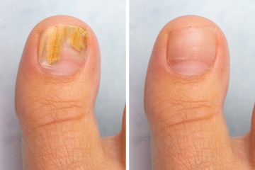 Before and after topical antifungal treatment is seen in the big toe of a person suffering from Onychomycosis, a fungal infection causing yellowing of the toenail. Wall mural