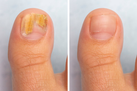 Before and after topical antifungal treatment is seen in the big toe of a person suffering from Onychomycosis, a fungal infection causing yellowing of the toenail.