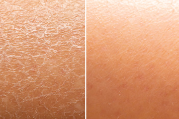 Before and after skin moisturization is seen in detail, with dried and cracked skin against a flawless smooth complexion.