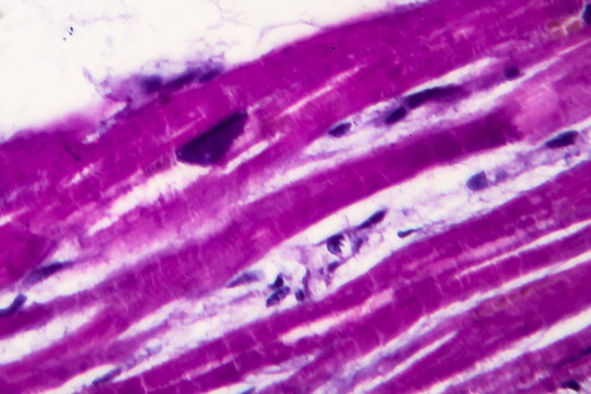 Histopathology of heart hypertrophy, high magnification. Photomicrograph showing hypertrophic myocardium with thick muscle fibers and enlarged and dark nuclei.