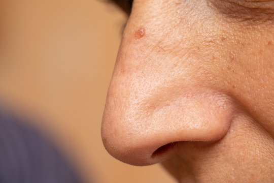 A closeup and side profile view on the nose of a mature caucasian woman, macro details of the open pores, blemishes, imperfections and skin tags. Aging skin with room for copy.