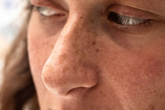 A closeup portrait of a thirty year old caucasian girl, macro details of freckles and sun spots around the nose and cheeks, damage from harmful sun rays.