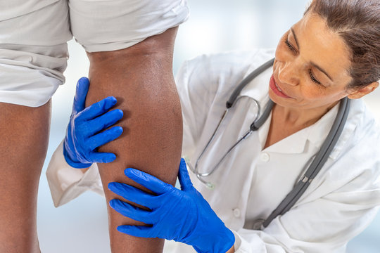 phlebologist inspecting a woman's leg looking for varicose veins on white background