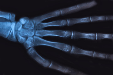 Medical x-ray image of human hand. Radiology diagnostic of skeleton bones