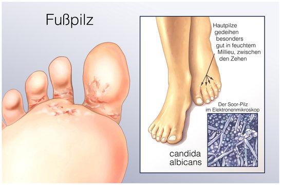Fusspilz.Candida albicans