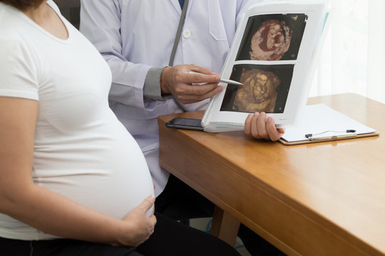 Doctor holding 4D ultrasound image result and talking to the pregnant woman. During pregnancy concept