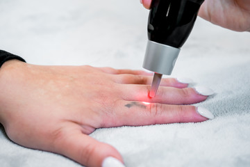 Picosecond laser tattoo removal on a small black tattoo on a patient's finger, in a skincare clinic, with a beautician administering the laser pulses.