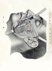 Surgery and medicine - cheek region: suborbital, preauricolar and buccomandibular zonee exposed with facial musculature, facial artery and vein