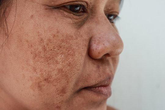 Skin problem, Closeup skin face asian women with spot melasma,  Dark spots, freckles, pigmentation  Skincare problem concept.