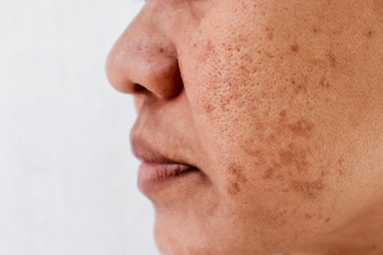 Skin problem, skin face asian women with spot melasma,  Dark spots, freckles, pigmentation  Skincare problem concept.