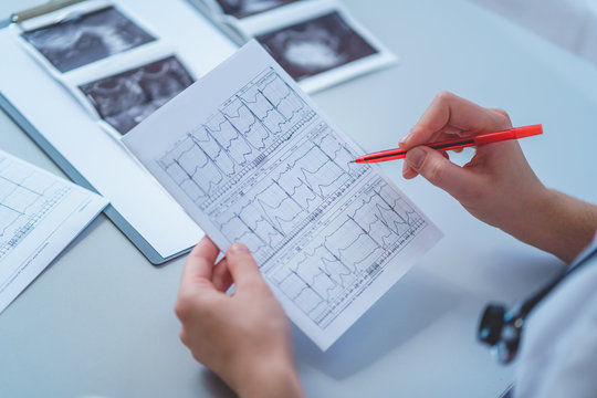 General practitioner examines electrocardiogram of patient during a health check and medical consultation. Healthcare and medicine. Diagnosis and treatment of the disease
