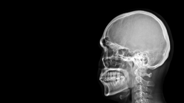 Film X-ray radiograph show human anatomy of bone skull, cervical spine and skeleton with free black space background.  Medical imaging in neurology and radiology concept