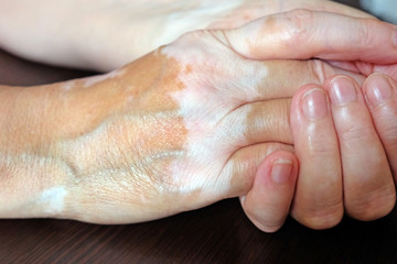 Woman's hands folded. The skin is stained with vitiligo. Vitiligo on the hands of a woman aged.