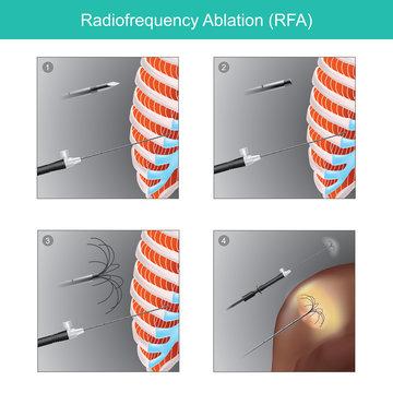 Radio frequency Ablation (RFA). Illustration info graphic medical.