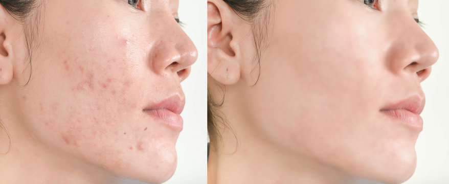 Before and After Retouch face and  Freckles  Woman  and skin problems  Facial Treatment Step