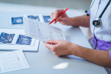 Doctor examines electrocardiogram of patient during a health check and medical consultation. Healthcare and medicine. Diagnosis and treatment of the disease