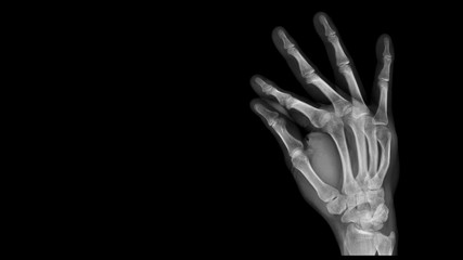 Film X ray hand radiograph show hand bone broken (fifth metacarpal fracture or Boxer's fracture) from traffic accident. The patient has hand pain and deformity. Medical imaging and technology concept