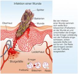 Infektion einer Wunde.Fremdkörper in der Haut