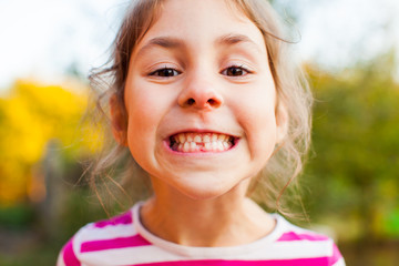 Smiling girl showing first permanent tooth coming up