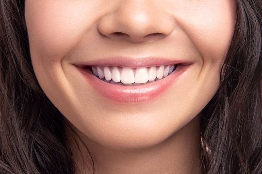 Closeup smile of young teen happy female woman great white teeth. Dental health.