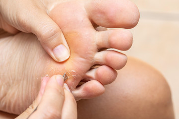 woman removing dead skin from the Sole of foot using small tongs, close up