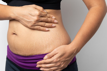 Women Show off the belly after birth. Stretch Marks on white background