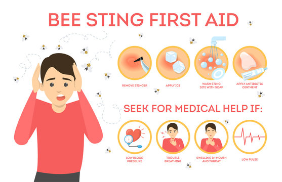 Bee sting first aid infographic. Remove sting from the skin