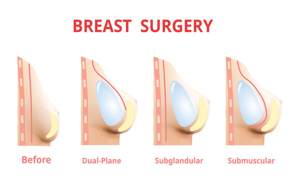 Breast implant before and after, Plastic surgery, 3D Realistic design Vector.
