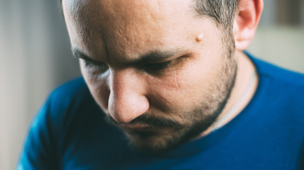 The tumor on the face of men near his temple , Lipoma Wen or zit, ugly acne, dermatology and ugliness