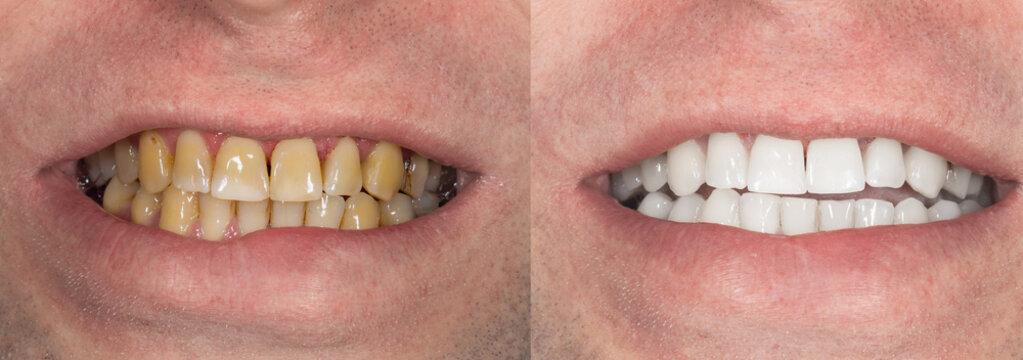 smoking, plaque on teeth