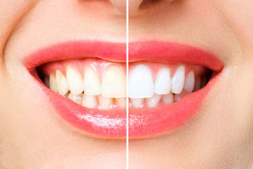 woman teeth before and after whitening. Over white background Fototapete