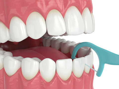 3d render of jaw with dental floss toothpick