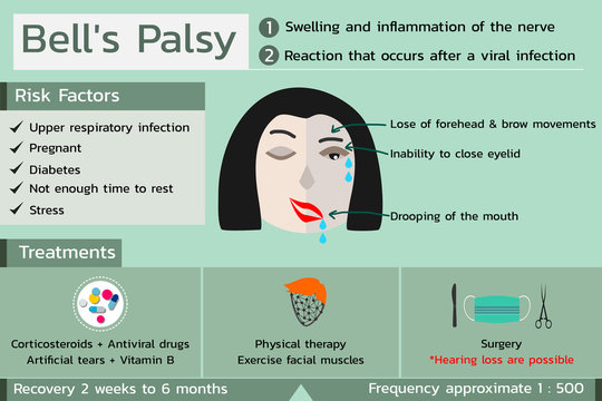 Bell's Palsy infographic in green color tone , vector