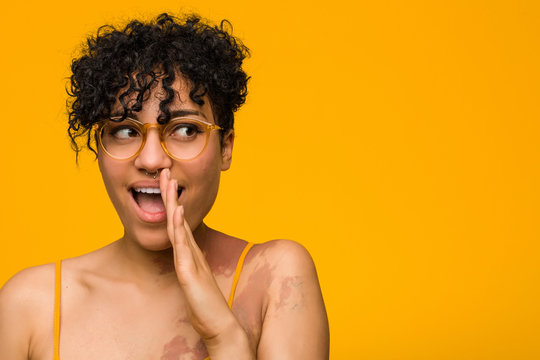 Young african american woman with skin birth mark is saying a secret hot braking news and looking aside