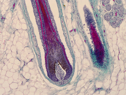 Head skin with hair follicles. Root of hair under the microscope.