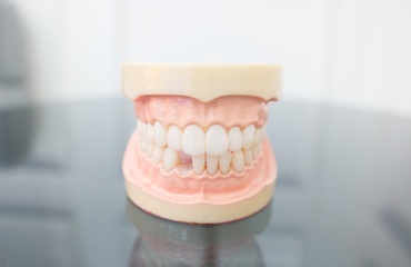 Close up picture mouth with dental problems showing missing tooth. concept Dental health care. Hygiene teeth. Dentistry