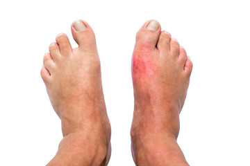 Man with right foot swollen and painful gout inflammation isolated on white background