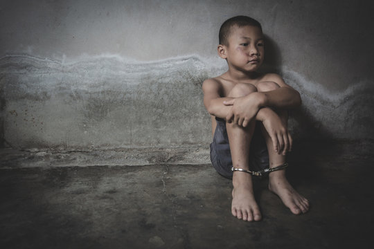 Child who are victims of the human trafficking process and have bruises on their faces.Child labor, Concept of ending violence against children and human rights.