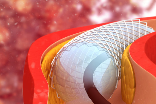 Angioplasty and stent placement. 3d illustration
