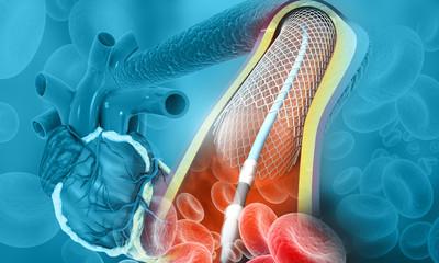 Human heart angioplasty. 3d illustration