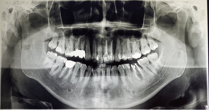 Orthopantomography of an adult patient, dentistry