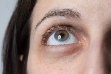 A closeup view on the eyeball of a girl as she looks up towards the ceiling, details of the green iris towards the top of the eye socket, dark circles are seen around the delicate skin.