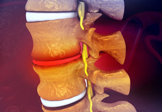 Human Spine With Slipped Disc on medical science background. 3d illustration