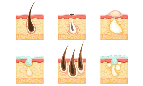 Set of skin images with hair roots, acne and sweat. Vector illustration.