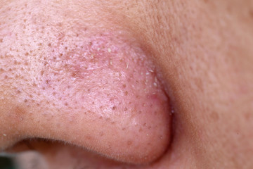 close-up blackheads on the nose