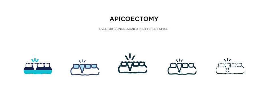 apicoectomy icon in different style vector illustration. two colored and black apicoectomy vector icons designed in filled, outline, line and stroke style can be used for web, mobile, ui